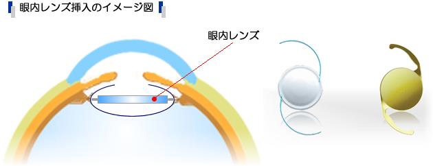 眼内レンズ挿入のイメージ図